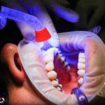 Zła metoda żywienia się to większe braki w ustach natomiast także ich zgubę